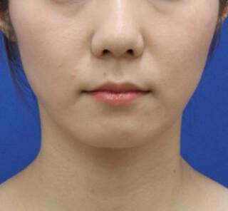 オザキクリニックLUXE新宿の顔の脂肪吸引(頬・顎下)の症例写真(アフター)