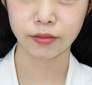 オザキクリニックLUXE新宿の顔の脂肪吸引(頬・あご下)の症例写真(アフター)