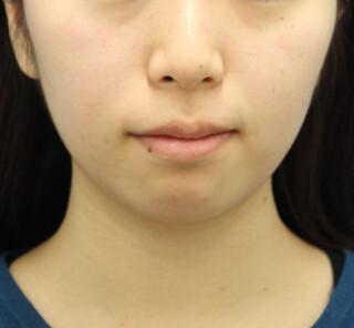 オザキクリニックLUXE新宿の顔の脂肪吸引(頬・あご下+バッカルファット)の症例写真(ビフォー)
