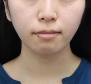 オザキクリニックLUXE新宿の顔の脂肪吸引(頬・あご下+バッカルファット)の症例写真(アフター)
