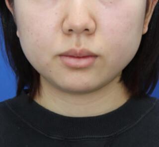 オザキクリニックLUXE新宿の顔脂肪吸引(頬+顎下、メーラー、バッカル)の症例写真(ビフォー)