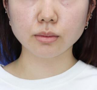 オザキクリニックLUXE新宿の顔脂肪吸引(頬+顎下、メーラー、バッカル)の症例写真(アフター)