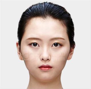 ドドリム整形外科の輪郭3点(頬骨縮小・顎骨削り・T切骨(ミニVライン形成))の症例写真(ビフォー)