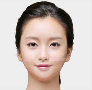 ドドリム整形外科の輪郭3点(頬骨縮小・顎骨削り・T切骨(ミニVライン形成))の症例写真(アフター)