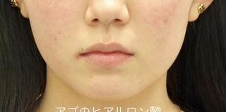 ルラ美容クリニックのアゴ ヒアルロン酸クレヴィエルの症例写真(ビフォー)