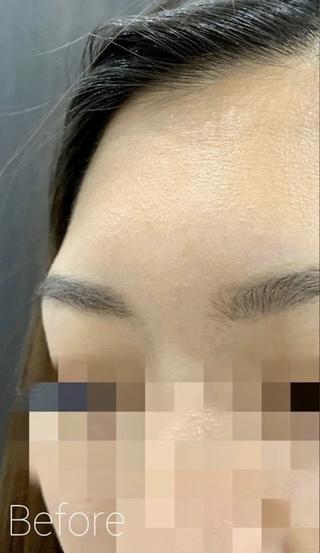 ルラ美容クリニックの額のヒアルロン酸注入で輪郭形成の症例写真(ビフォー)