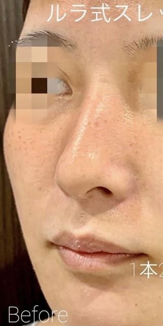ルラ美容クリニック 高田馬場院の切らない鼻中隔延長術(ルラ式スレッドノーズ)の症例写真(ビフォー)