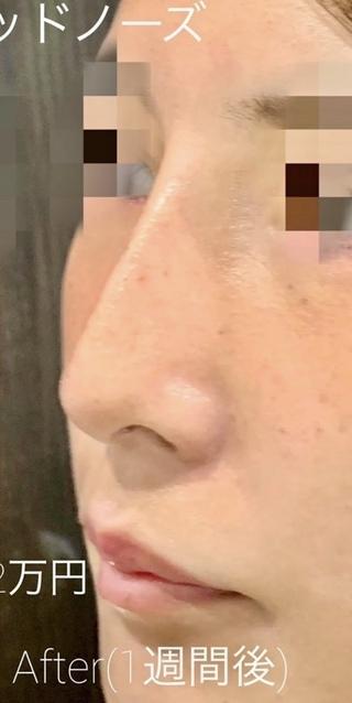 ルラ美容クリニック 高田馬場院の切らない鼻中隔延長術(ルラ式スレッドノーズ)の症例写真(アフター)
