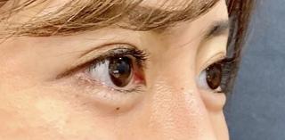 ルラ美容クリニックのグラマラスライン形成術+目尻切開 抜糸直後の症例写真(ビフォー)