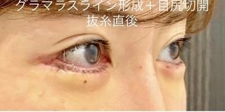ルラ美容クリニックのグラマラスライン形成術+目尻切開 抜糸直後の症例写真(アフター)