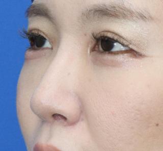 オザキクリニックLUXE新宿の【鼻整形】耳介軟骨移植(鼻翼拳上)の症例写真(アフター)