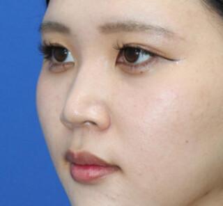 オザキクリニックLUXE新宿の【鼻整形】鼻プロテーゼ+耳介軟骨移植+鼻尖形成の症例写真(ビフォー)