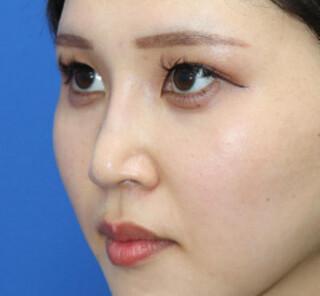 オザキクリニックLUXE新宿の【鼻整形】鼻プロテーゼ+耳介軟骨移植+鼻尖形成の症例写真(アフター)