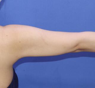 オザキクリニックLUXE新宿の脂肪吸引(二の腕)の症例写真(アフター)