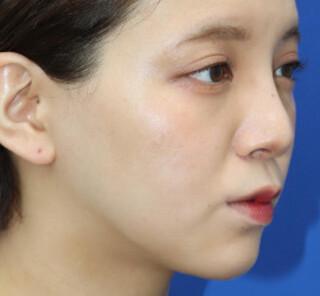 オザキクリニックLUXE新宿の顔の脂肪吸引(頬、あご下、バッカルファット)の症例写真(アフター)