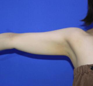 オザキクリニックLUXE新宿の脂肪吸引(二の腕すっきりコース)の症例写真(ビフォー)