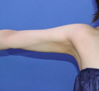 オザキクリニックLUXE新宿の脂肪吸引(二の腕すっきりコース)の症例写真(アフター)
