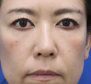 オザキクリニックLUXE新宿の人中短縮+口角拳上の症例写真(ビフォー)