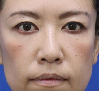 オザキクリニックLUXE新宿の人中短縮+口角拳上の症例写真(アフター)