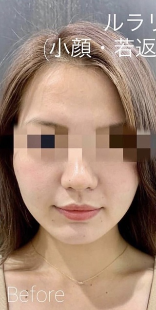 ルラ美容クリニックのルラリフト(小顔・若返り糸リフト)の症例写真(ビフォー)