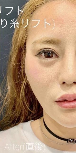 ルラ美容クリニックのルラリフト(小顔・若返り糸リフト)の症例写真(アフター)