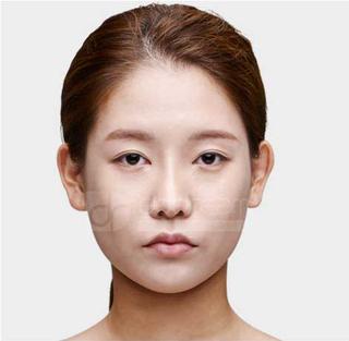 ドドリム整形外科の非切開目つき矯正、輪郭3点(頬骨縮小・顎骨削り・T切骨(ミニVライン形成))、2重顎脂肪吸引の症例写真(ビフォー)