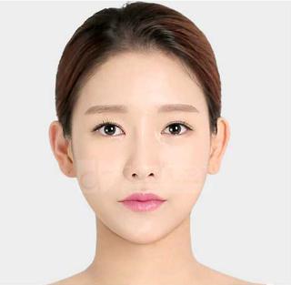 ドドリム整形外科の非切開目つき矯正、輪郭3点(頬骨縮小・顎骨削り・T切骨(ミニVライン形成))、2重顎脂肪吸引の症例写真(アフター)