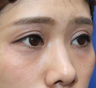 オザキクリニックLUXE新宿のたれ目・でか目形成+目尻切開の症例写真(ビフォー)