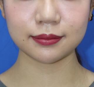 オザキクリニックLUXE新宿の顔の脂肪吸引+鼻整形+眉下切開法の症例写真(ビフォー)
