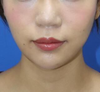 オザキクリニックLUXE新宿の顔の脂肪吸引+鼻整形+眉下切開法の症例写真(アフター)