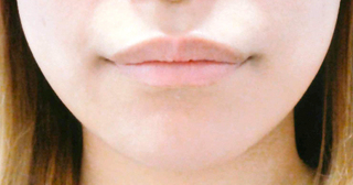 宇都宮竹内クリニックの口角挙上手術(口内法)の症例写真(アフター)