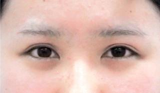 宇都宮竹内クリニックのタレ目形成術の症例写真(ビフォー)