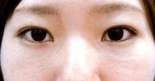 宇都宮竹内クリニックの目頭切開、目尻切開、二重まぶた埋没法の症例写真(アフター)