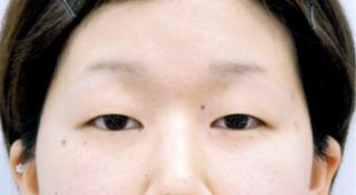 宇都宮竹内クリニックの切らない眼瞼下垂手術の症例写真(ビフォー)