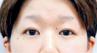 宇都宮竹内クリニックの切らない眼瞼下垂手術の症例写真(アフター)
