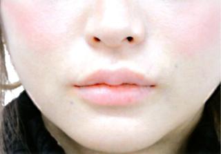 宇都宮竹内クリニックの竹内式M字型リップ形成手術の症例写真(アフター)