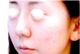 宇都宮竹内クリニックの鼻中隔延長術の症例写真(ビフォー)