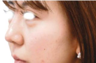 宇都宮竹内クリニックの鼻中隔延長術の症例写真(アフター)
