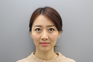 銀座みゆき通り美容外科 東京本院の脱脂コンデンスリポ法の症例写真(アフター)