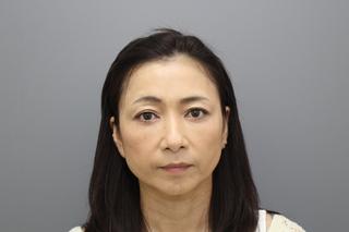 銀座みゆき通り美容外科 東京本院の下瞼切開たるみ取り+脱脂コンデンスリポ法の症例写真(アフター)