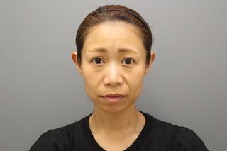 銀座みゆき通り美容外科 東京本院の脱脂コンデンスリポ法の症例写真(ビフォー)