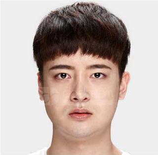 ドドリム整形外科の非切開目つき矯正、輪郭3点(頬骨縮小・顎骨削り・T切骨(ミニVライン形成))の症例写真(ビフォー)