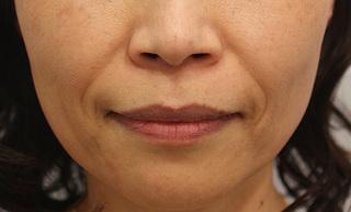 RDクリニック大阪の肌細胞補充療法によるほうれい線治療の症例写真(ビフォー)