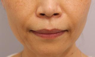 RDクリニック大阪の肌細胞補充療法によるほうれい線治療の症例写真(アフター)