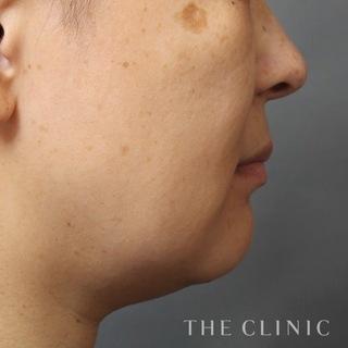 THE CLINIC(ザ・クリニック)横浜院の顔のベイザー脂肪吸引の症例写真(ビフォー)