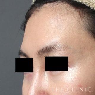 THE CLINIC(ザ・クリニック)横浜院のおでこの脂肪注入(CRF注入)の症例写真(ビフォー)