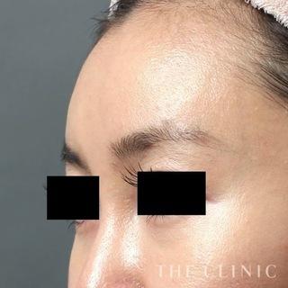 THE CLINIC(ザ・クリニック)横浜院のおでこの脂肪注入(CRF注入)の症例写真(アフター)