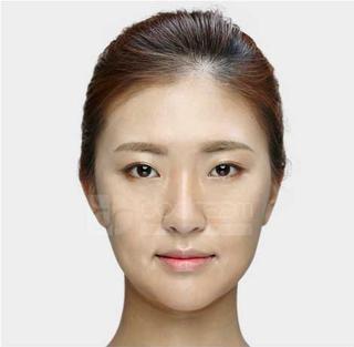 ドドリム整形外科の鼻筋再手術(寄贈肋軟骨使用)、顔脂肪移植の症例写真(ビフォー)