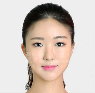 ドドリム整形外科の鼻筋再手術(寄贈肋軟骨使用)、顔脂肪移植の症例写真(アフター)