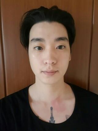 DA美容外科の輪郭・目・鼻の症例写真(ビフォー)